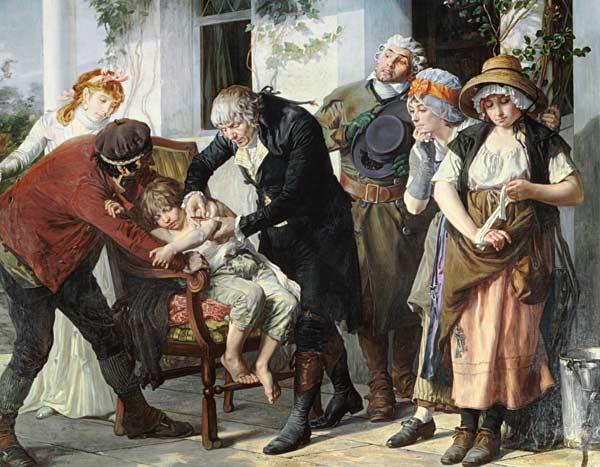 Edward Jenner (1749-1823) pratiquant la première vaccination contre la variole en 1796• Crédits : Gaston Melingue